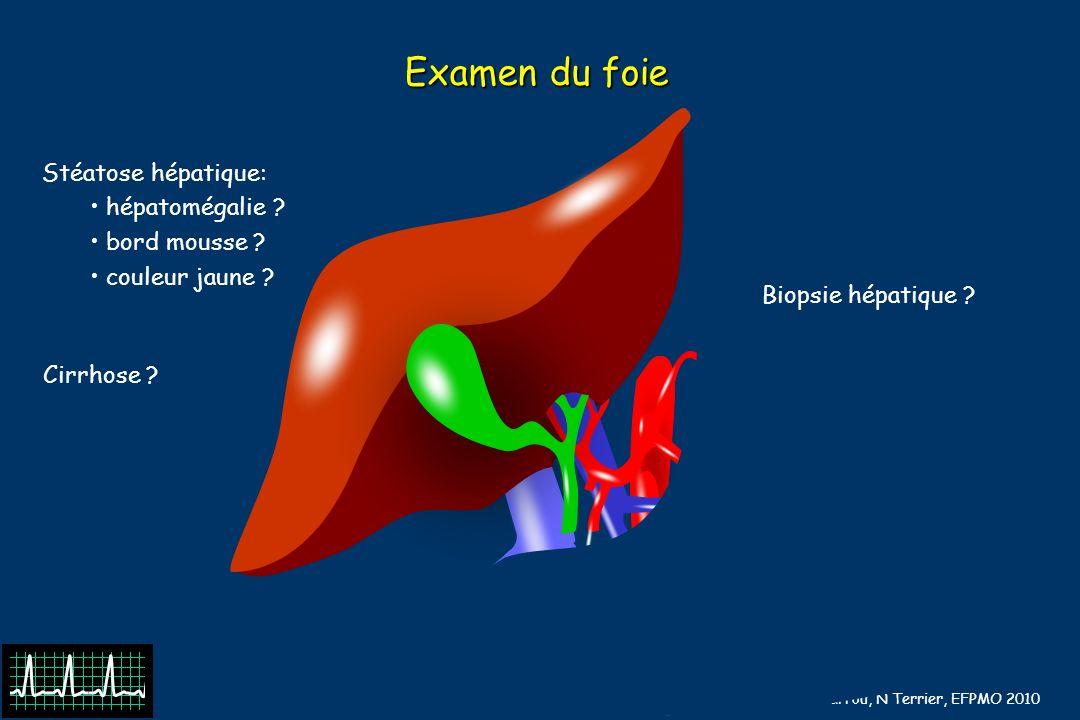 B Barrou, N Terrier, EFPMO 2010 Examen du foie Stéatose hépatique: hépatomégalie ? bord mousse ? couleur jaune ? Biopsie hépatique ? Cirrhose ?