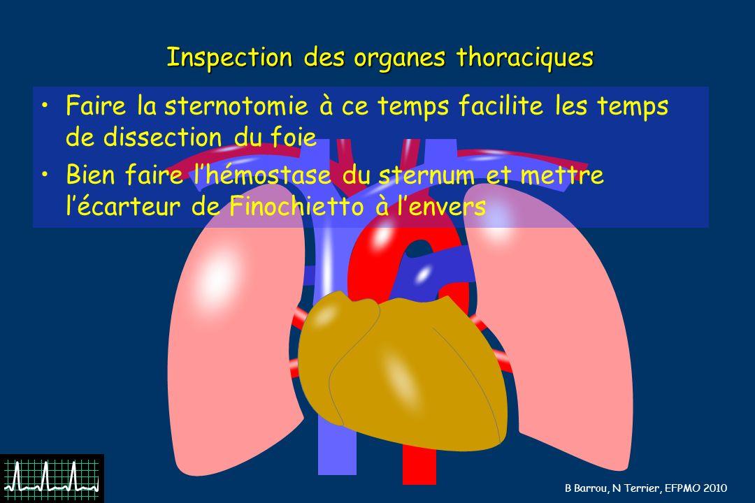 B Barrou, N Terrier, EFPMO 2010 Inspection des organes thoraciques Faire la sternotomie à ce temps facilite les temps de dissection du foie Bien faire