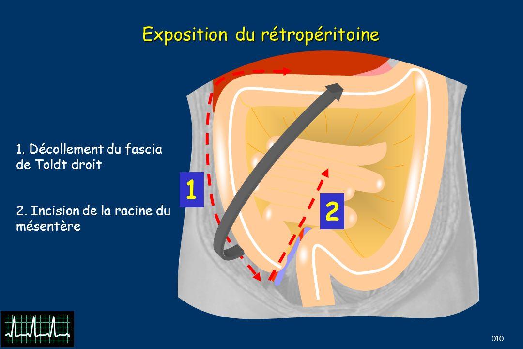 B Barrou, N Terrier, EFPMO 2010 Exposition du rétropéritoine 1 2 1.