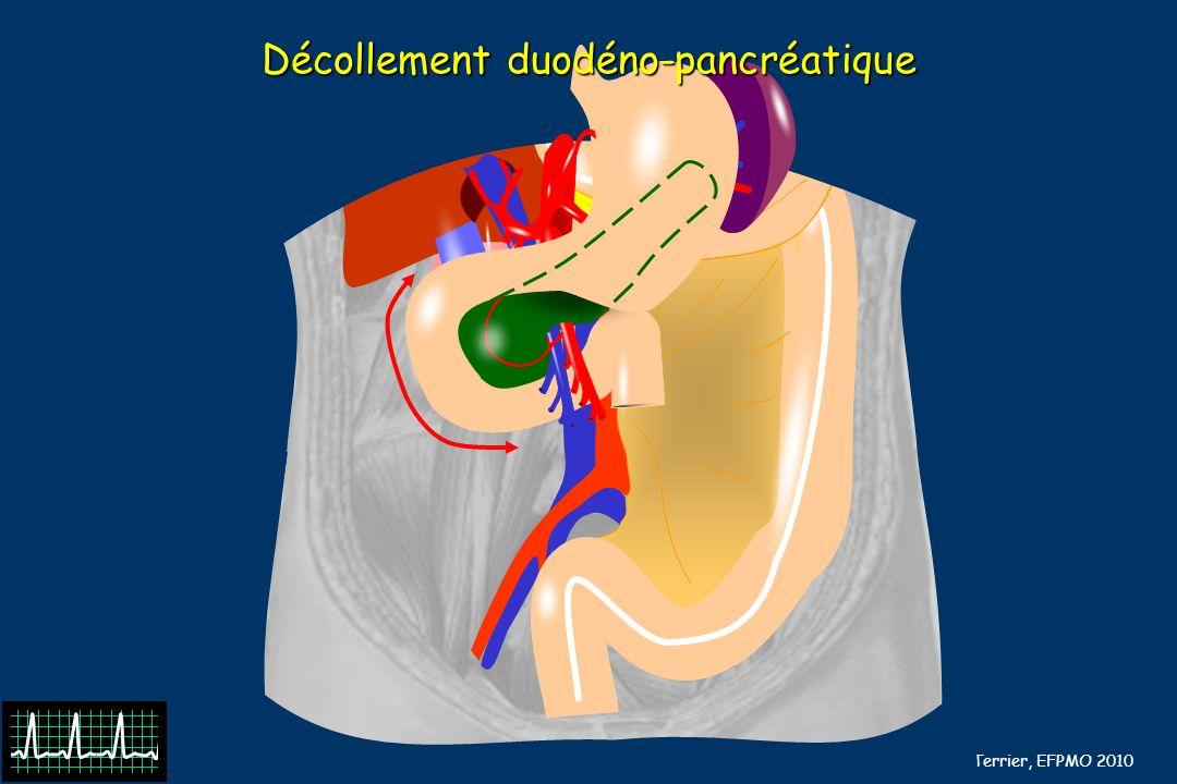 B Barrou, N Terrier, EFPMO 2010 Section de lartère hypogastrique (2) On peut même aller prendre un café