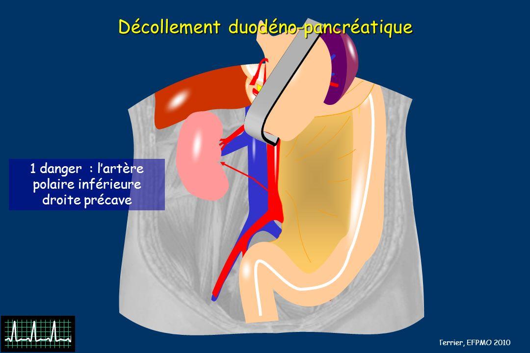 B Barrou, N Terrier, EFPMO 2010 Décollement duodéno-pancréatique 1 danger : lartère polaire inférieure droite précave