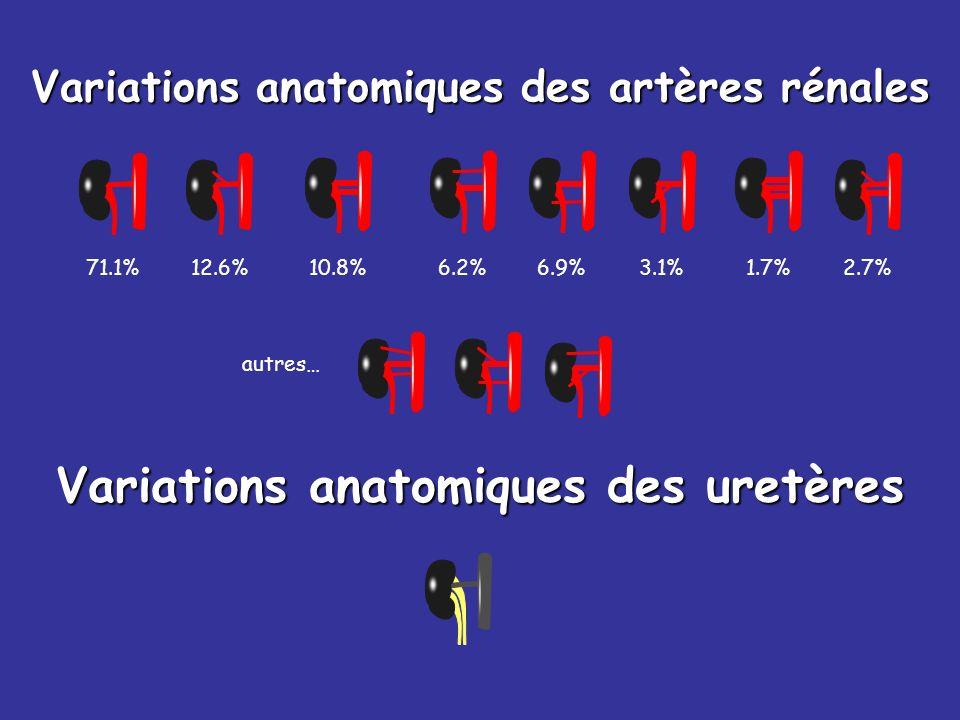Variations anatomiques des artères rénales 71.1%12.6% 10.8% 6.2%6.9%3.1%1.7%2.7% autres… Variations anatomiques des uretères