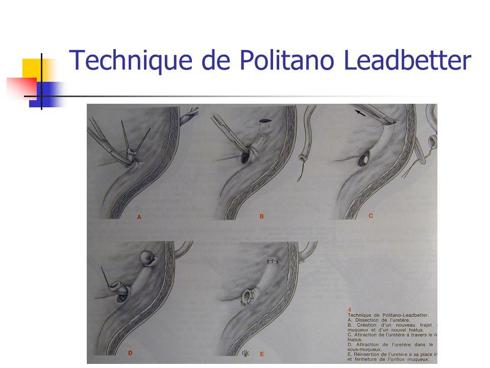 Technique de Politano Leadbetter