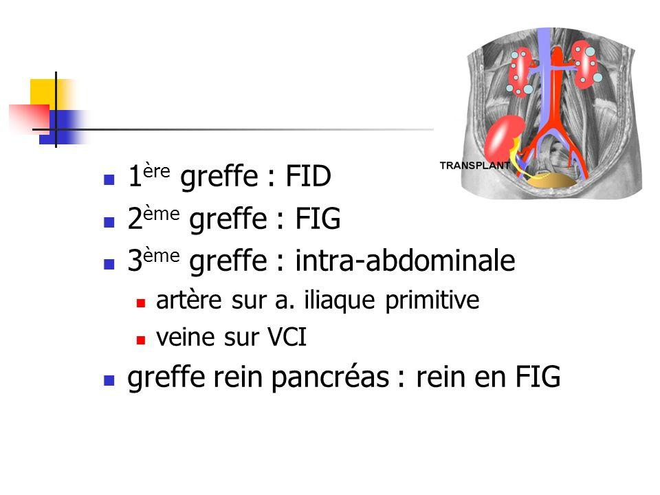 1 ère greffe : FID 2 ème greffe : FIG 3 ème greffe : intra-abdominale artère sur a. iliaque primitive veine sur VCI greffe rein pancréas : rein en FIG