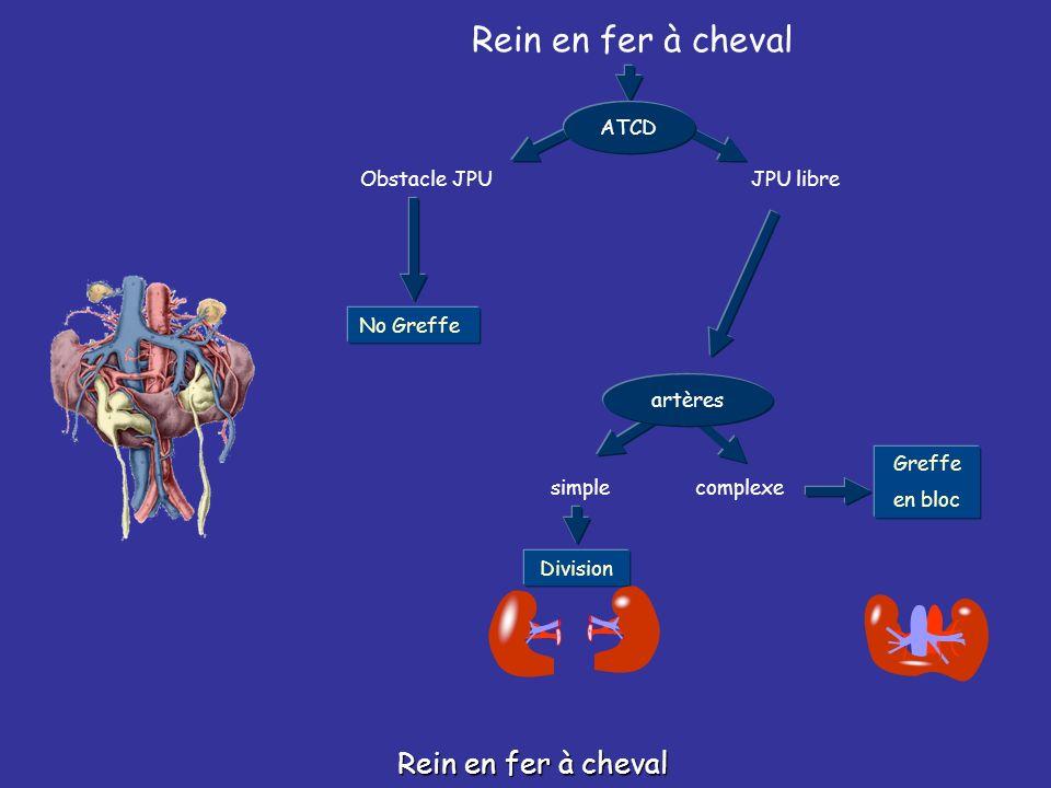Rein en fer à cheval Obstacle JPUJPU libre No Greffe ATCD Greffe en bloc complexe Division artères simple