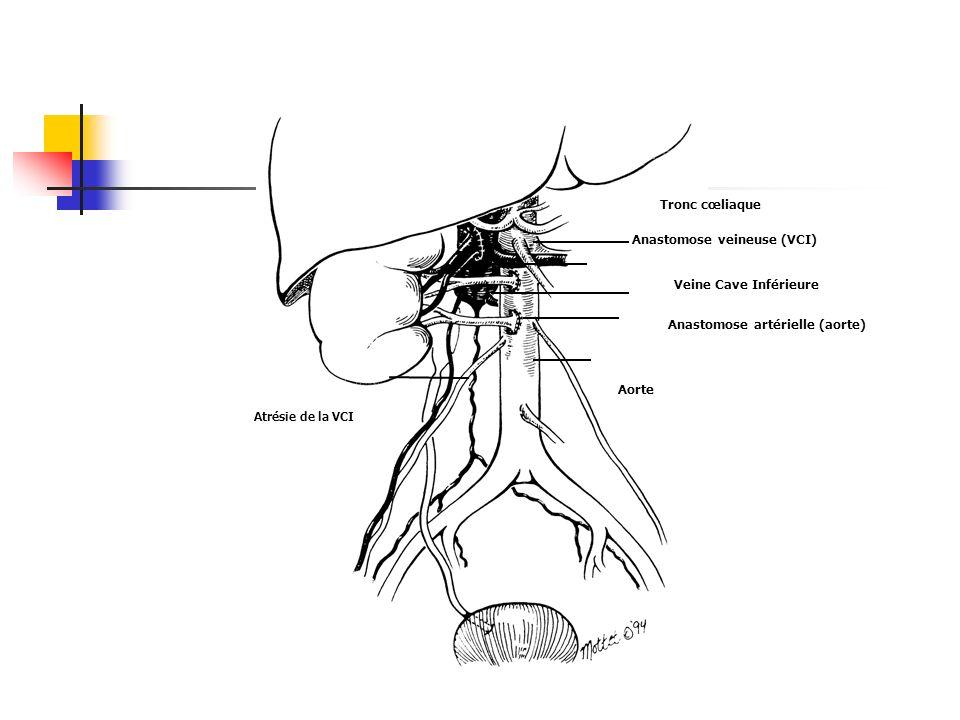 Atrésie de la VCI Aorte Tronc cœliaque Anastomose veineuse (VCI) Anastomose artérielle (aorte) Veine Cave Inférieure