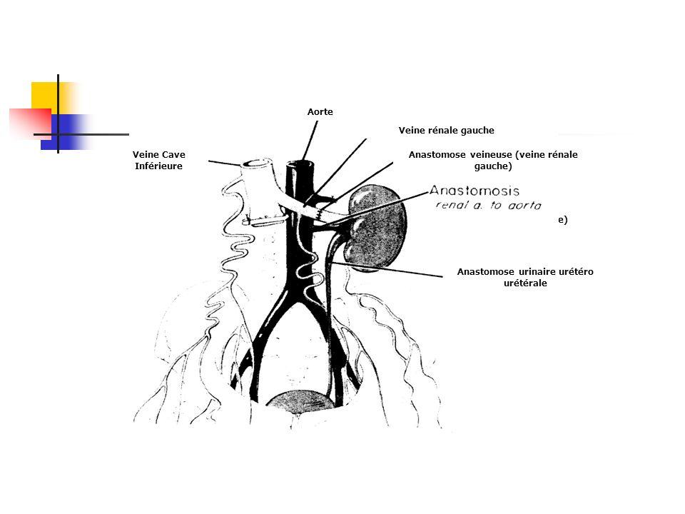 Anastomose artérielle (aorte) Aorte Veine rénale gauche Anastomose veineuse (veine rénale gauche) Anastomose urinaire urétéro urétérale Veine Cave Inf