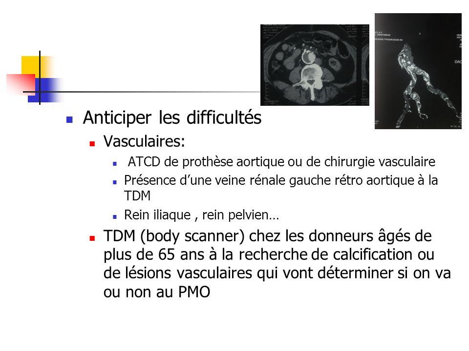 Anticiper les difficultés Vasculaires: ATCD de prothèse aortique ou de chirurgie vasculaire Présence dune veine rénale gauche rétro aortique à la TDM Rein iliaque, rein pelvien… TDM (body scanner) chez les donneurs âgés de plus de 65 ans à la recherche de calcification ou de lésions vasculaires qui vont déterminer si on va ou non au PMO