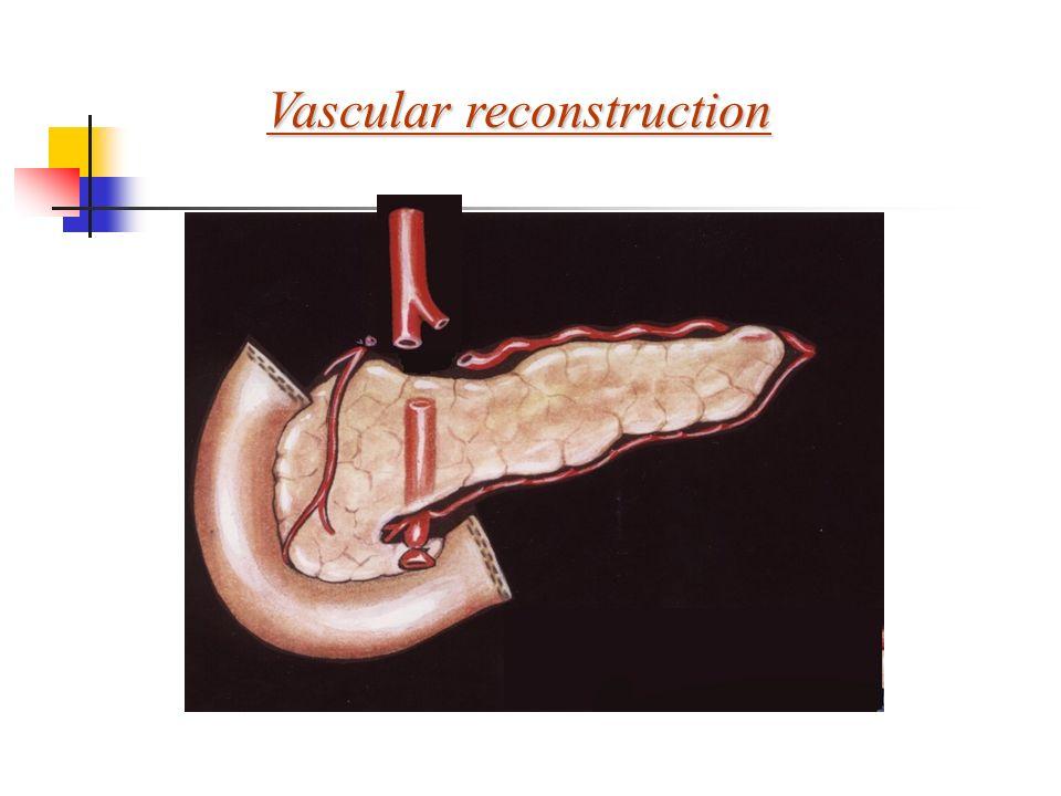 Vascular reconstruction