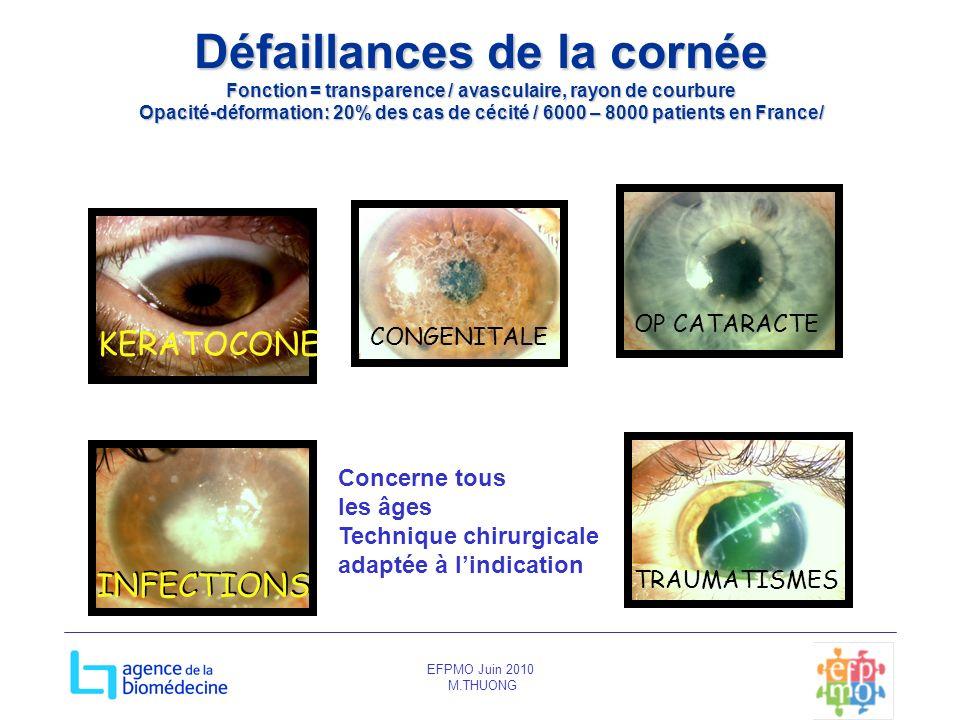 EFPMO Juin 2010 M.THUONG Défaillances de la cornée Fonction = transparence / avasculaire, rayon de courbure Opacité-déformation: 20% des cas de cécité