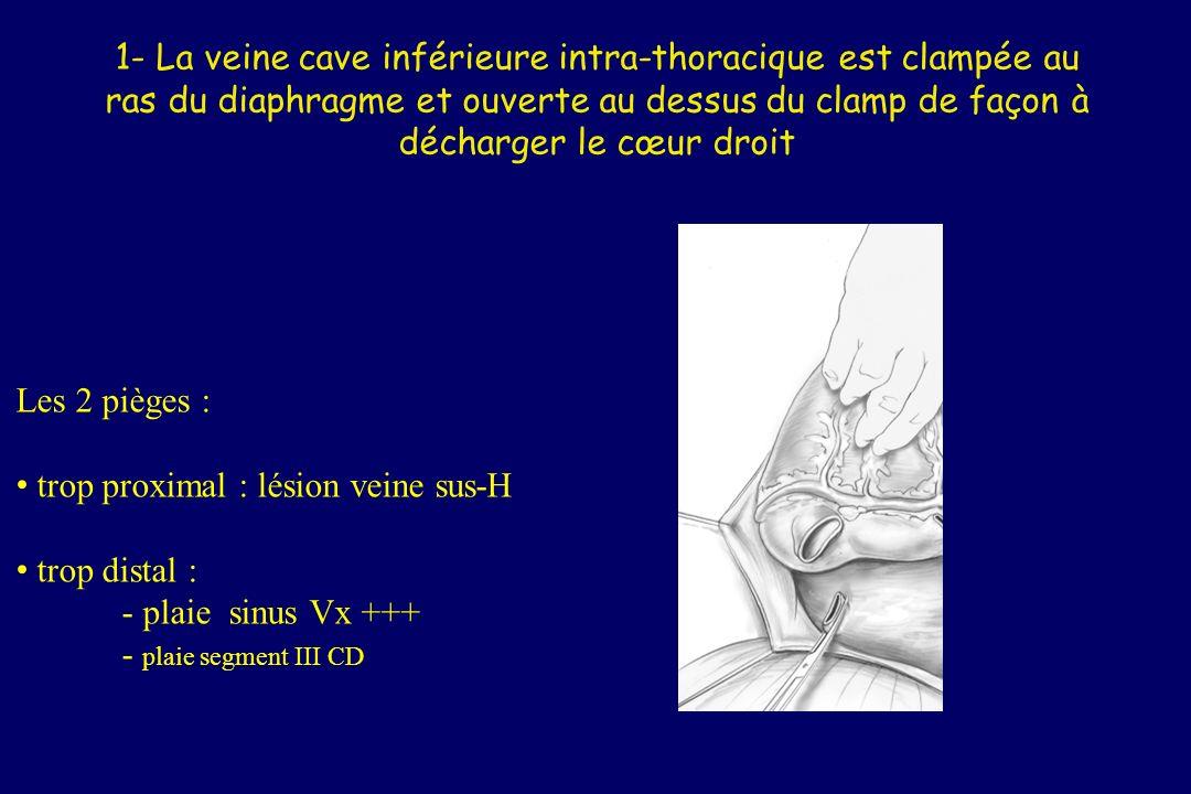 2-La veine cave supérieure est liée 3-Laorte ascendante est clampée juste en aval de la canule de cardioplégie Les 2 pièges : trop proximal sur la VCS : azygos plaie de lAPD par le clamp