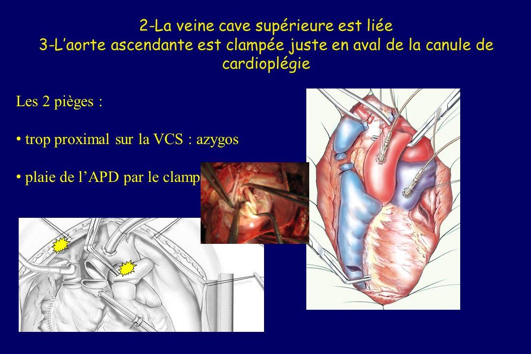 4-Le chirurgien cardiaque, aidé par le chirurgien thoracique, sectionne lauricule gauche de façon à assurer le retour de la pneumoplégie et à décharger le cœur gauche Refuser que le chirurgien cardiaque décharge le cœur gauche par une veine pulmonaire !!!