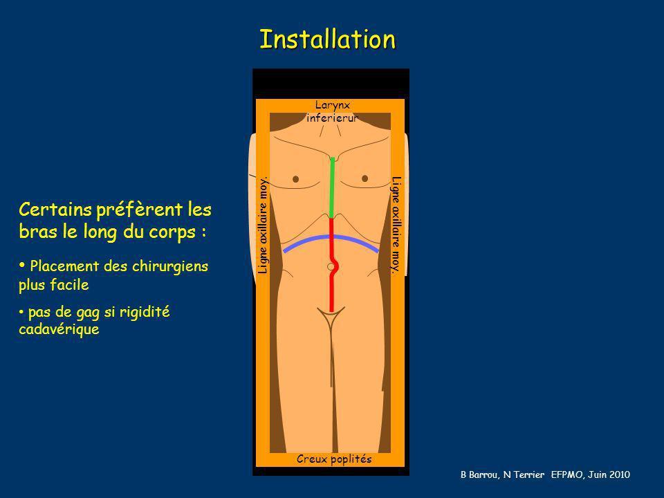 Larynx inferierur Creux poplités Ligne axillaire moy. Installation Certains préfèrent les bras le long du corps : Placement des chirurgiens plus facil