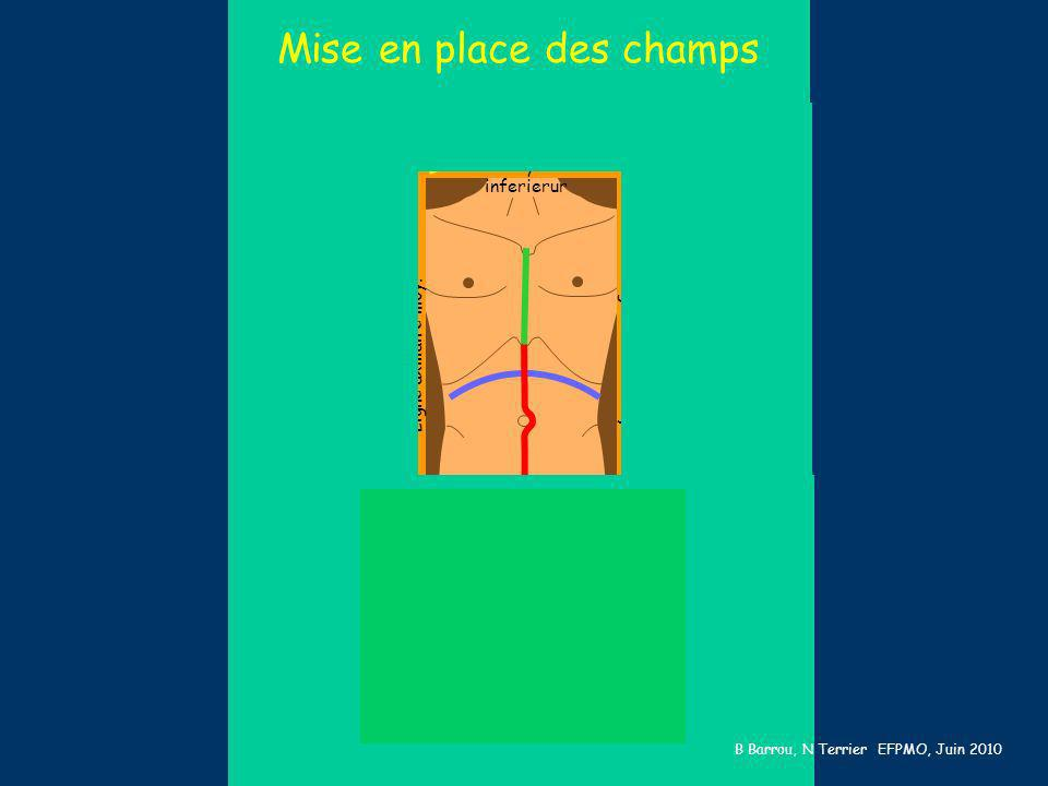 Larynx inferierur Creux poplités Ligne axillaire moy. table Mise en place des champs B Barrou, N Terrier EFPMO, Juin 2010