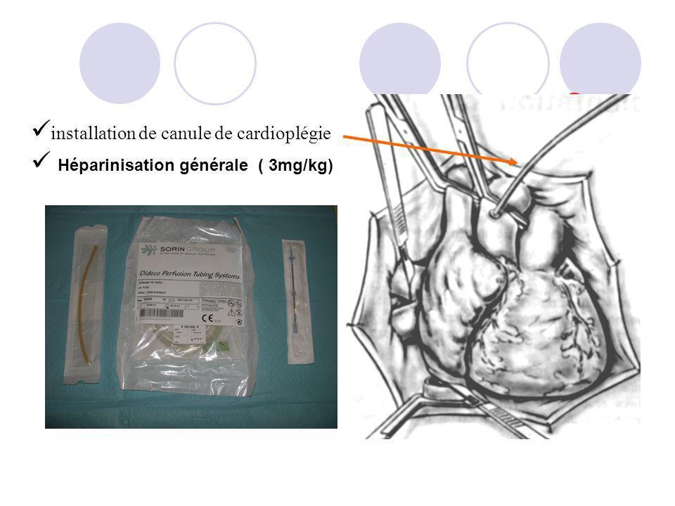 installation de canule de cardioplégie Héparinisation générale ( 3mg/kg)