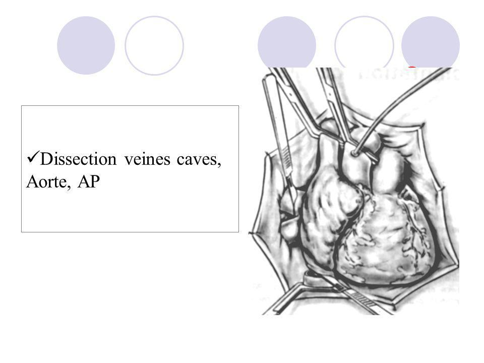 Dissection veines caves, Aorte, AP