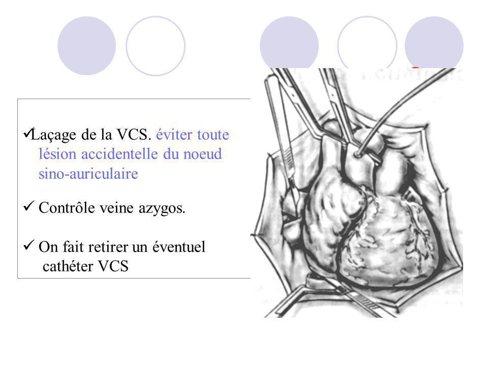 Laçage de la VCS. éviter toute lésion accidentelle du noeud sino-auriculaire Contrôle veine azygos. On fait retirer un éventuel cathéter VCS