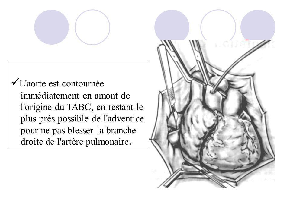 L'aorte est contournée immédiatement en amont de l'origine du TABC, en restant le plus près possible de l'adventice pour ne pas blesser la branche dro