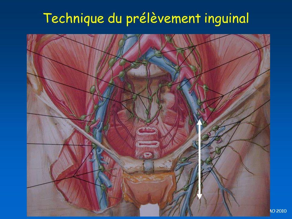 B Barrou, EFPMO 2010 Technique du prélèvement inguinal