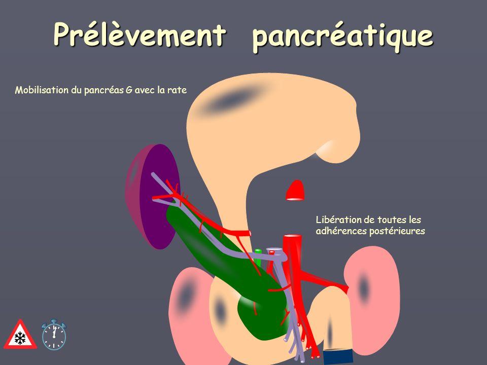 Mobilisation du pancréas G avec la rate Prélèvement pancréatique Libération de toutes les adhérences postérieures