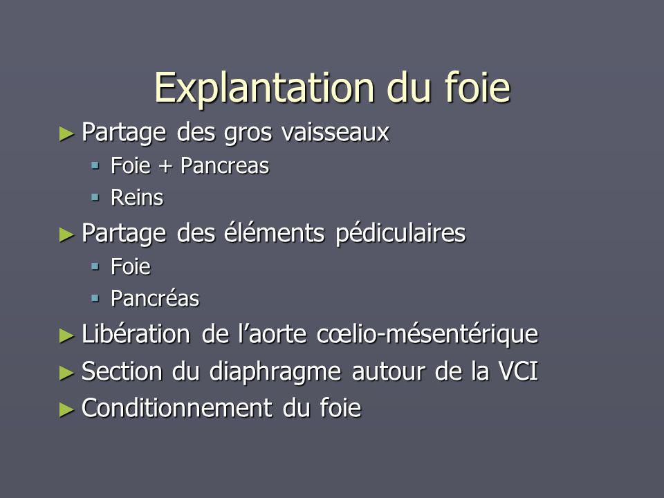 Partage des gros vaisseaux Partage des gros vaisseaux Foie + Pancreas Foie + Pancreas Reins Reins Partage des éléments pédiculaires Partage des élémen