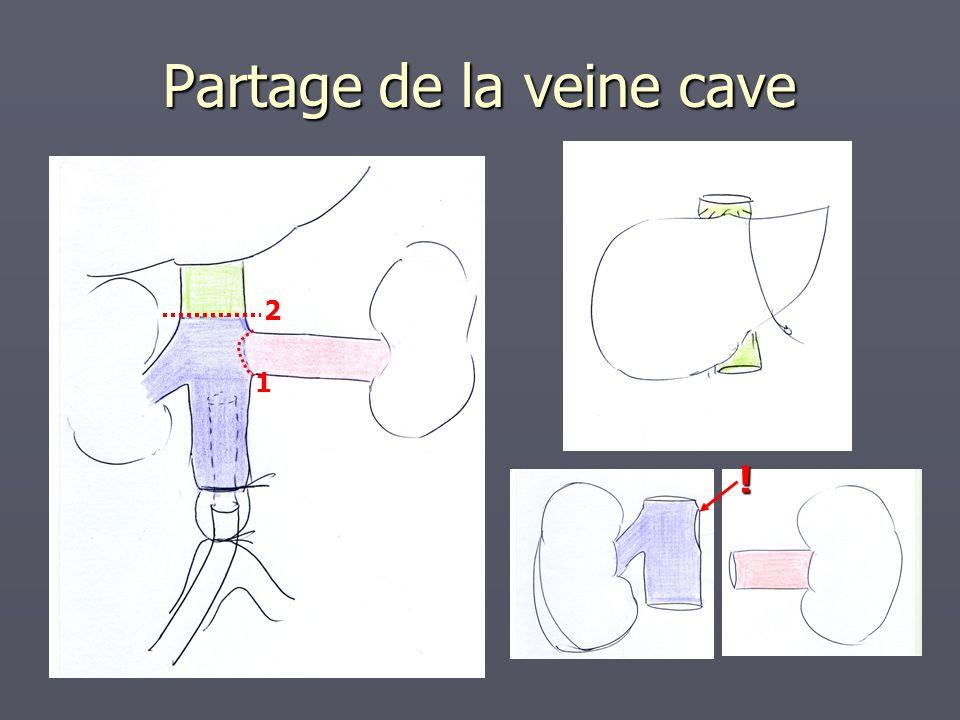 Prélèvement pancréatique Agrafage de D1 à la pince GIA Agrafage de D4 à la pince GIA Section à la racine de la mésentérique supérieure
