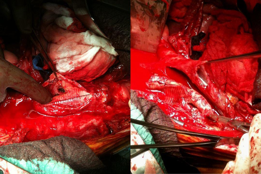 Type de sepsis Infection de prothèse primaire116 (69%) Fistule prothéto-digestive51 (31%) 55 fistules duodénale38* jéjunale5 iléale7 colique5 rénale1*