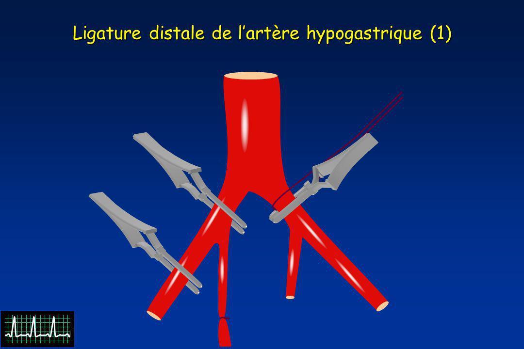 Ligature distale de lartère hypogastrique (1)