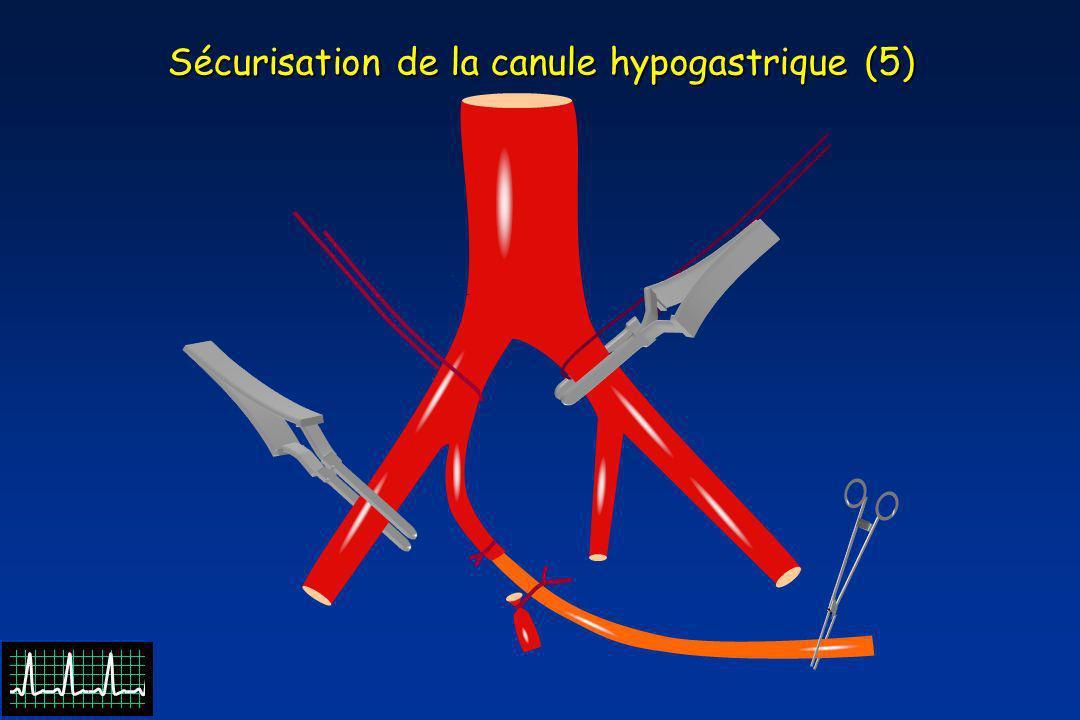 Sécurisation de la canule hypogastrique (5)