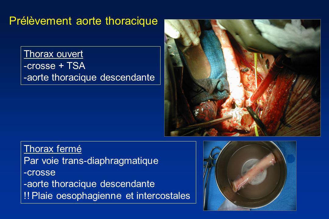 Prélèvement aorte thoracique Thorax ouvert -crosse + TSA -aorte thoracique descendante Thorax fermé Par voie trans-diaphragmatique -crosse -aorte thor