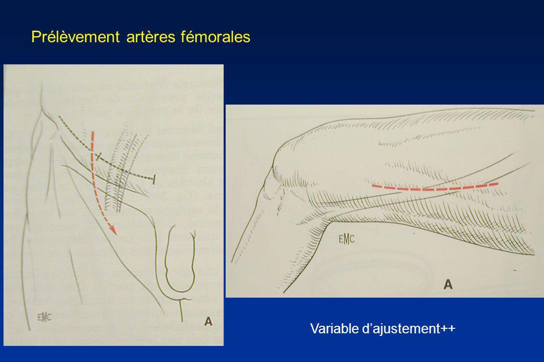 Prélèvement artères fémorales Variable dajustement++