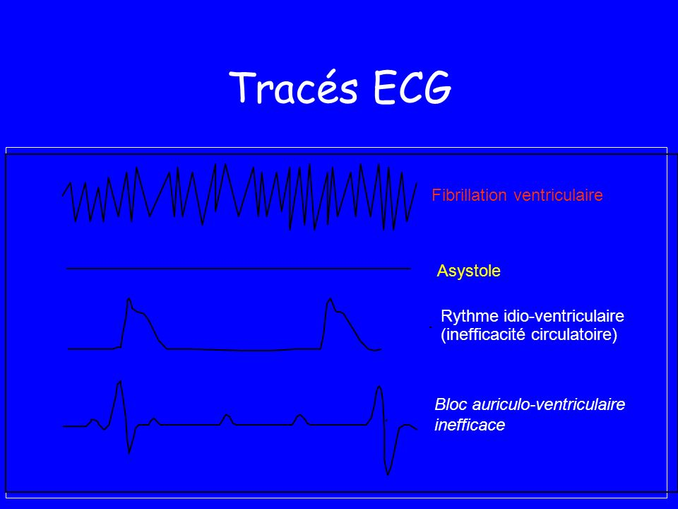 Tracés ECG Asystole Fibrillation ventriculaire Bloc auriculo-ventriculaire inefficace Rythme idio-ventriculaire (inefficacité circulatoire)