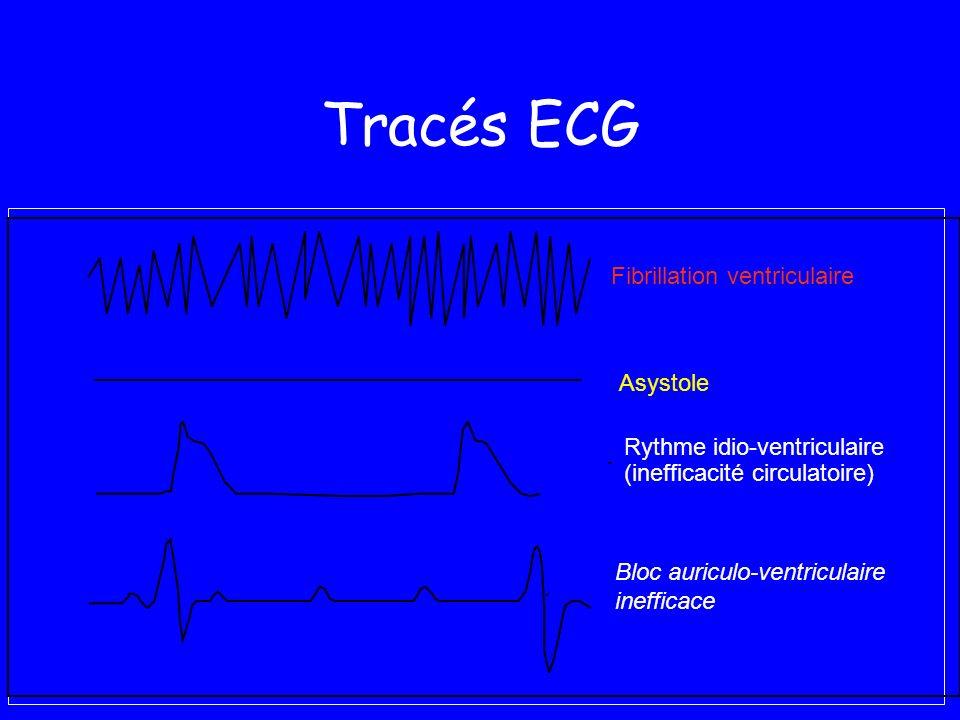 Tracés ECG Asystole Fibrillation ventriculaire Bloc auriculo-ventriculaire inefficace Rythme idio-ventriculaire (inefficacité circulatoire)