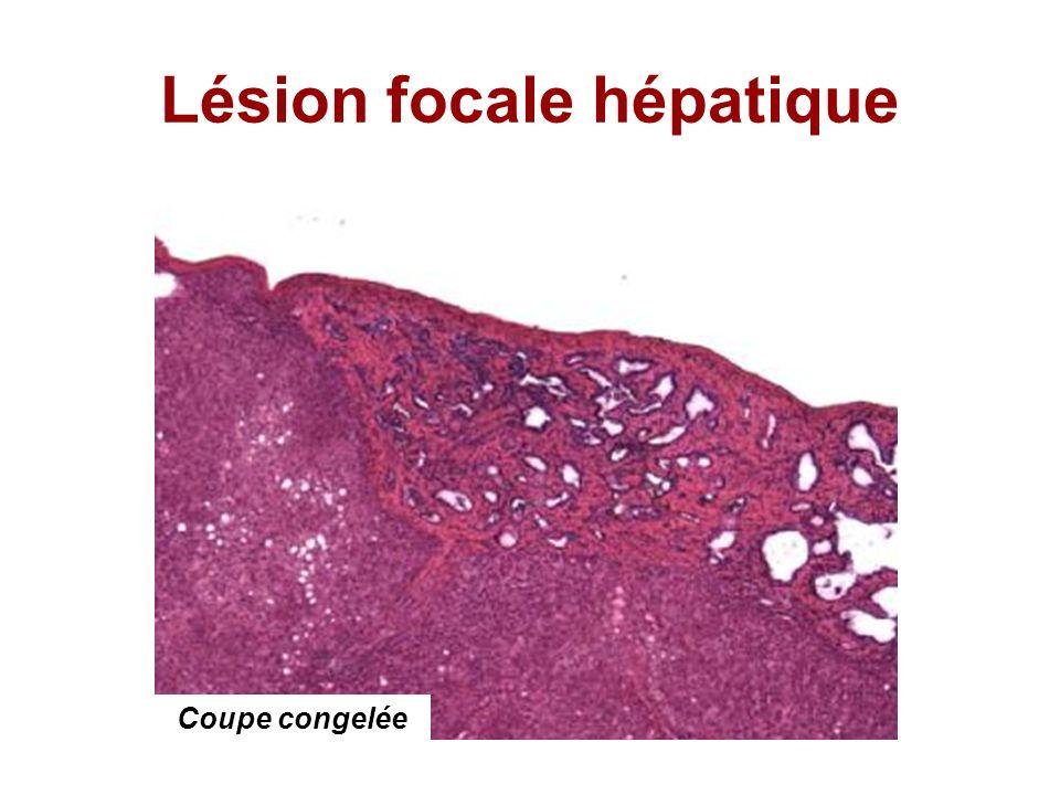 Lésion focale hépatique Coupe congelée