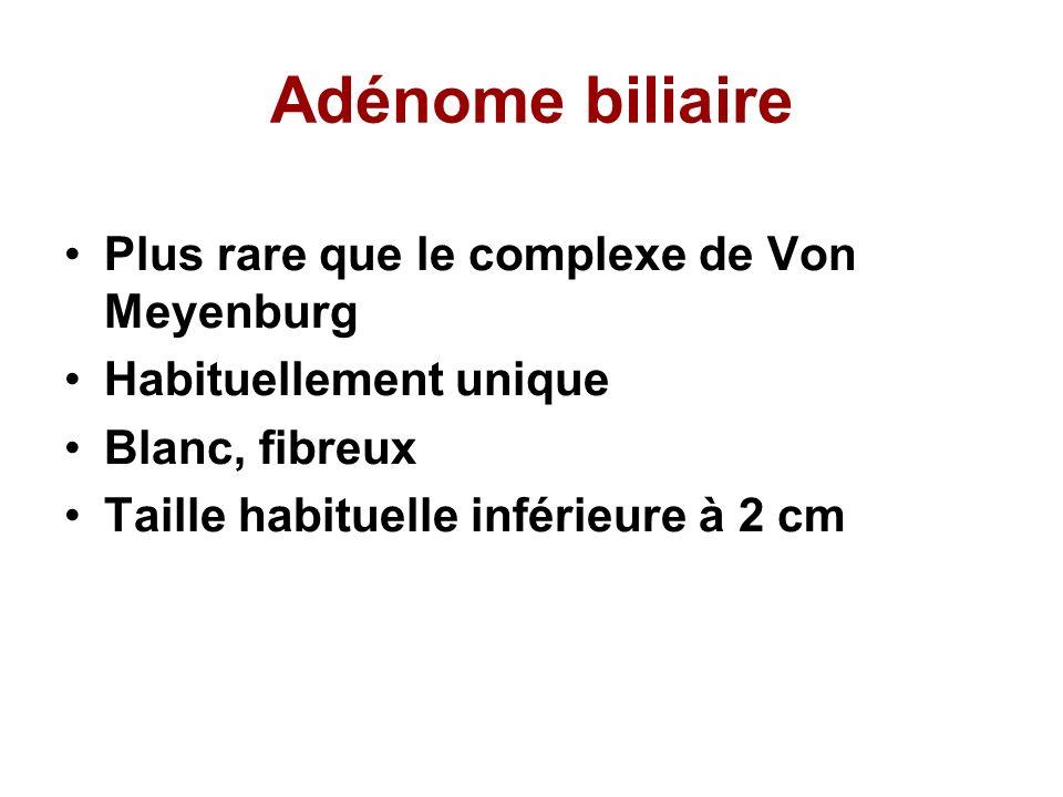 Adénome biliaire Plus rare que le complexe de Von Meyenburg Habituellement unique Blanc, fibreux Taille habituelle inférieure à 2 cm