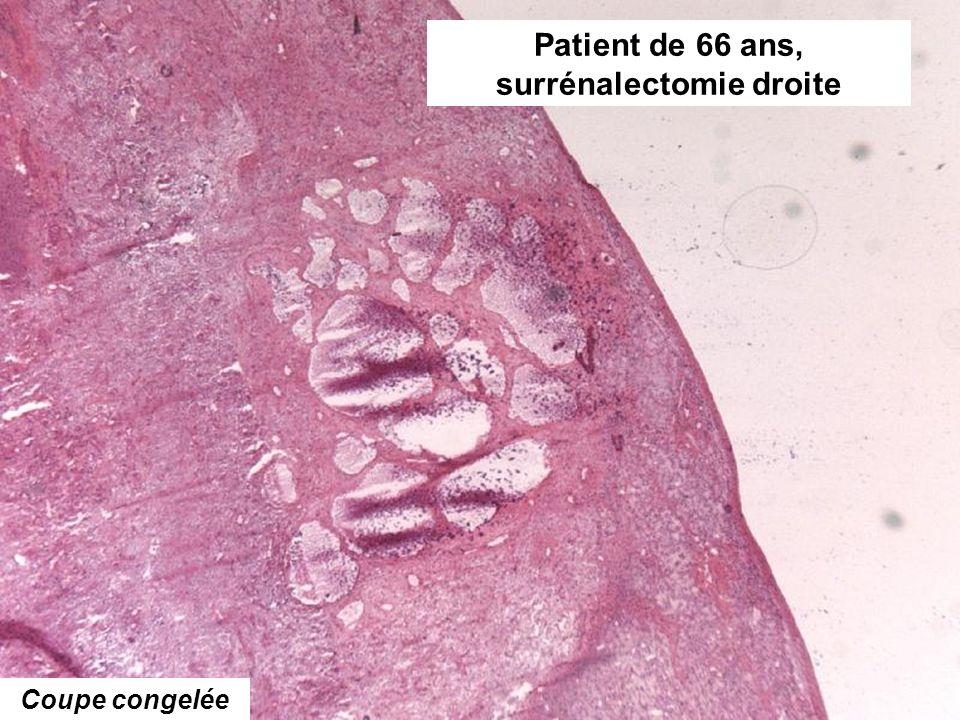 Coupe congelée Patient de 66 ans, surrénalectomie droite
