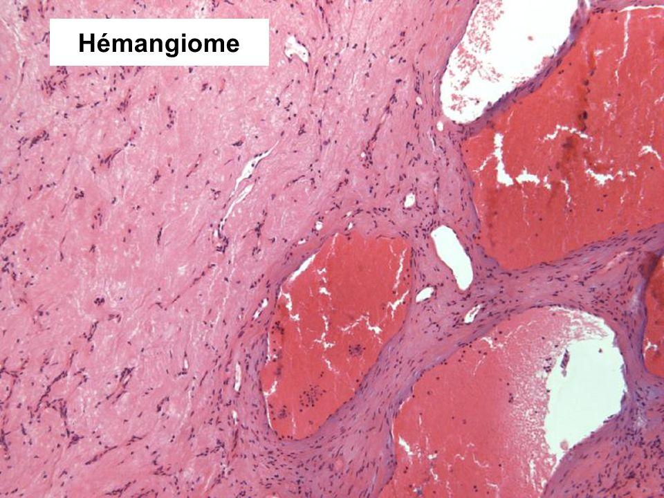 Hémangiome