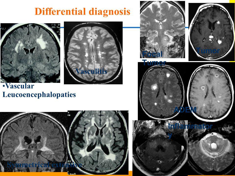 ADEM Vasculitis Symmetrical extensive Focal Tumor Differential diagnosis Vascular Leucoencephalopaties Tumor Inflammator y