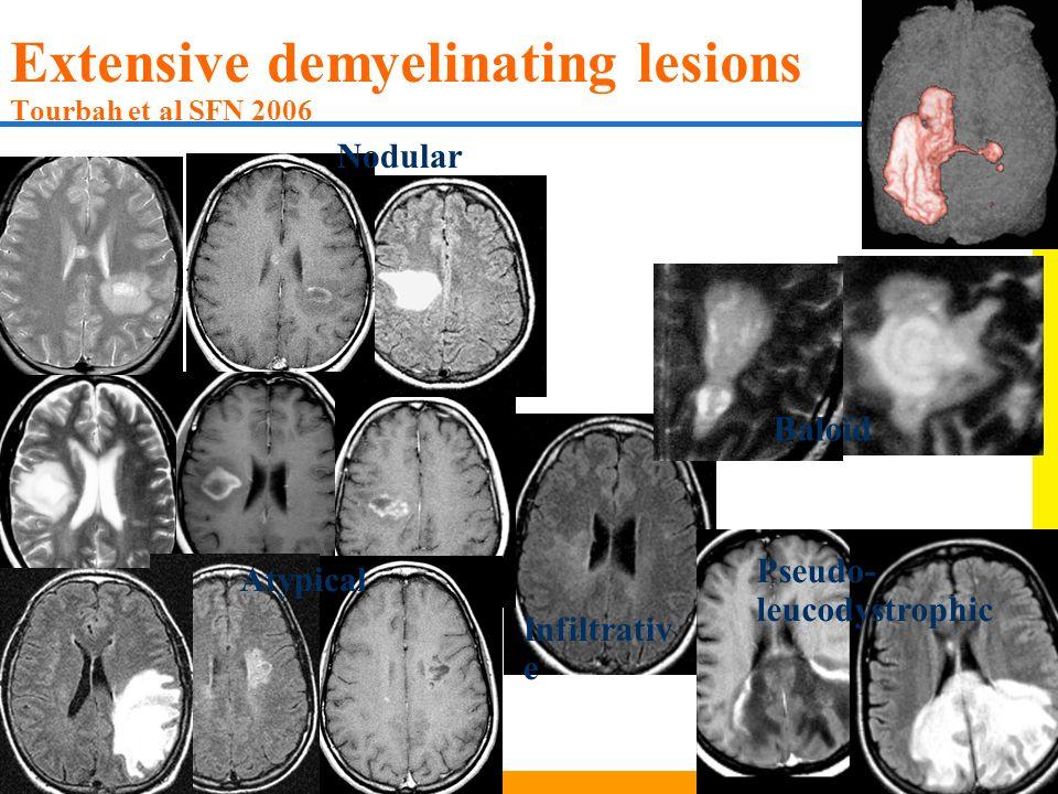 Extensive demyelinating lesions Tourbah et al SFN 2006 Infiltrativ e Baloïd Nodular Atypical Pseudo- leucodystrophic
