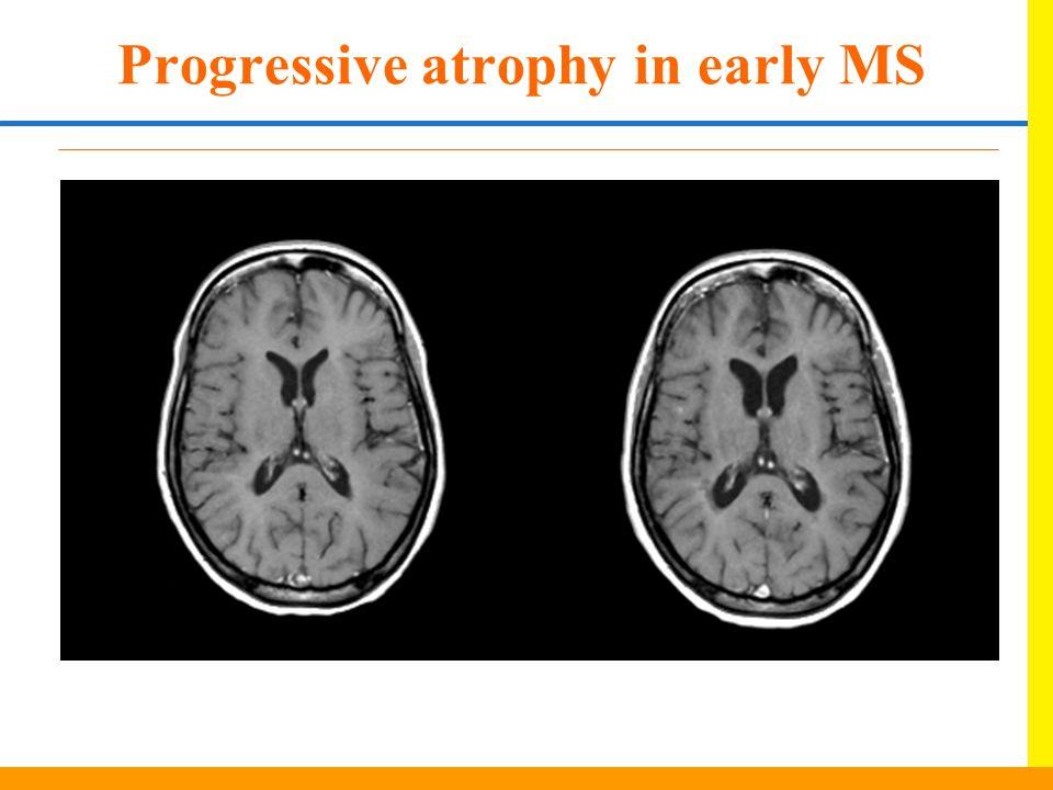 Progressive atrophy in early MS