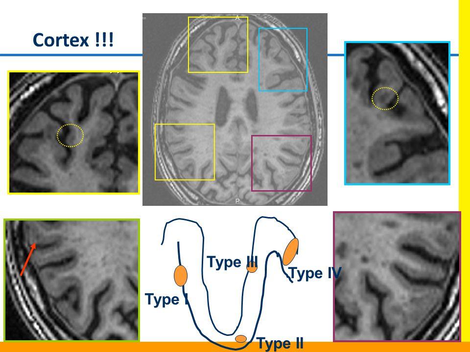 Type I Type II Type III Type IV Cortex !!!