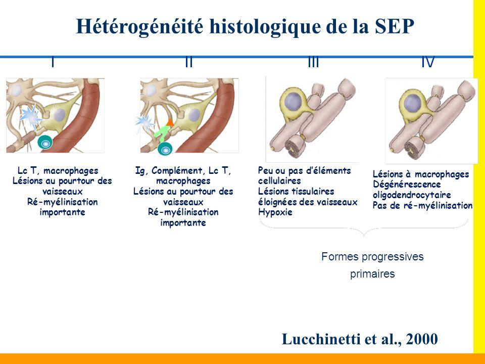 Hétérogénéité histologique de la SEP Lucchinetti et al., 2000