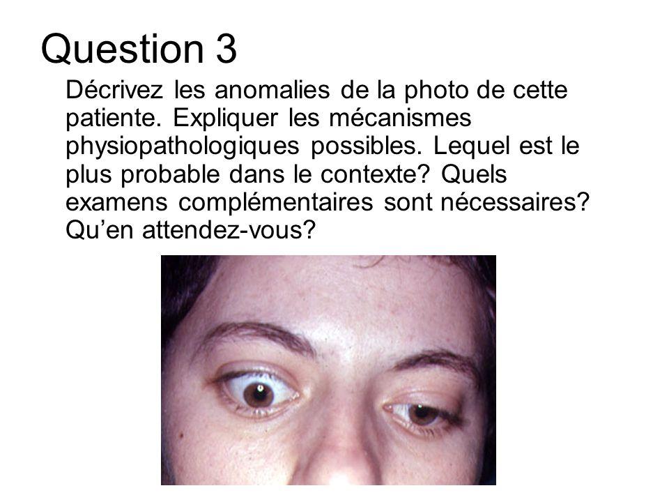 Question 3 Décrivez les anomalies de la photo de cette patiente. Expliquer les mécanismes physiopathologiques possibles. Lequel est le plus probable d
