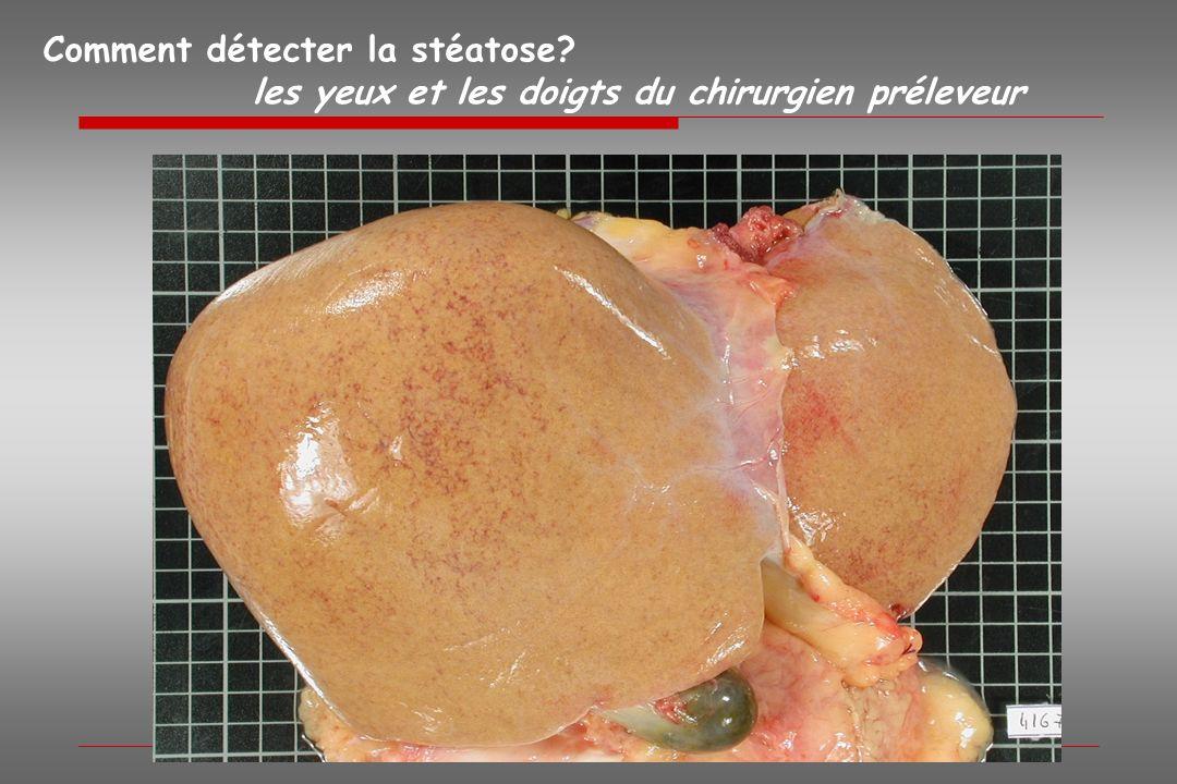 Comment détecter la stéatose? les yeux et les doigts du chirurgien préleveur