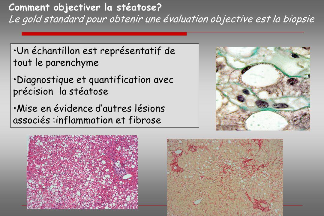 Comment objectiver la stéatose? Le gold standard pour obtenir une évaluation objective est la biopsie Un échantillon est représentatif de tout le pare