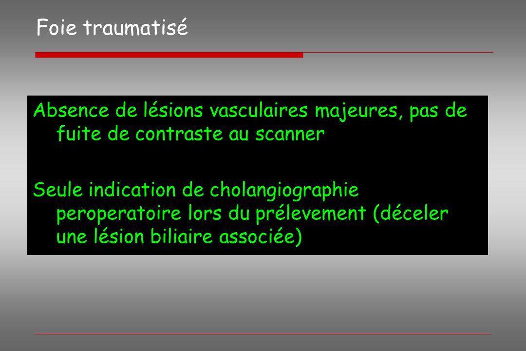 Foie traumatisé Absence de lésions vasculaires majeures, pas de fuite de contraste au scanner Seule indication de cholangiographie peroperatoire lors