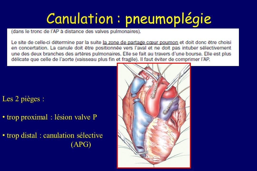 Canulation : pneumoplégie Les 2 pièges : trop proximal : lésion valve P trop distal : canulation sélective (APG)