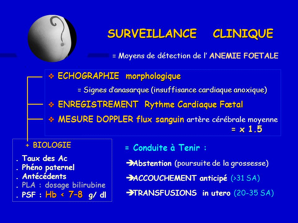 = Moyens de détection de l ANEMIE FOETALE = Conduite à Tenir : Abstention (poursuite de la grossesse) ACCOUCHEMENT anticipé (>31 SA) TRANSFUSIONS in u