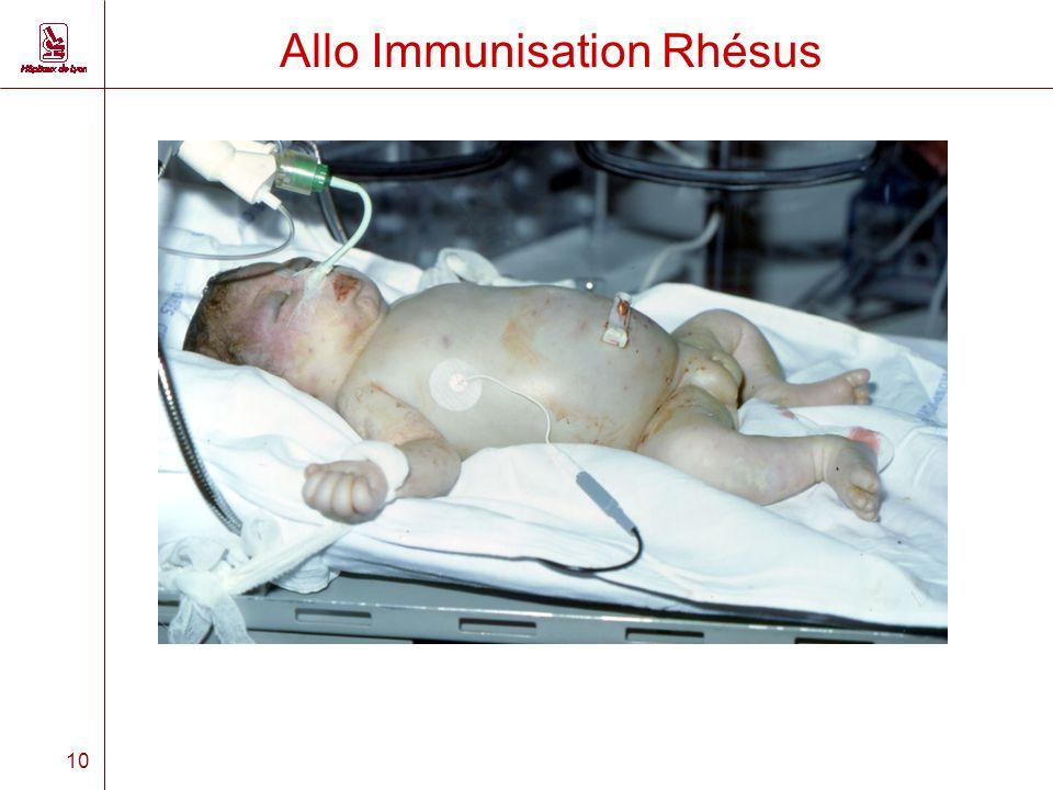 10 Allo Immunisation Rhésus