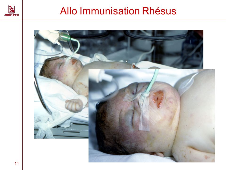 11 Allo Immunisation Rhésus